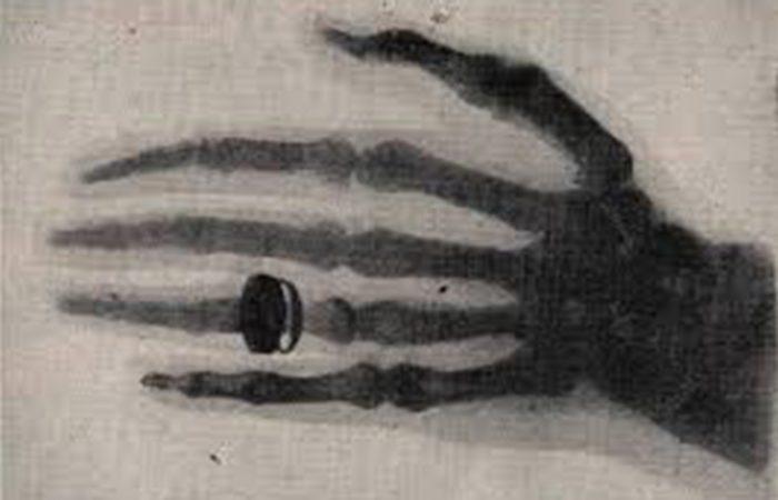 Miről híres Wolfgang Conrad Roentgen?